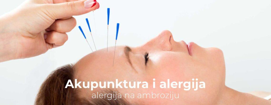 Akupunktura i alergija